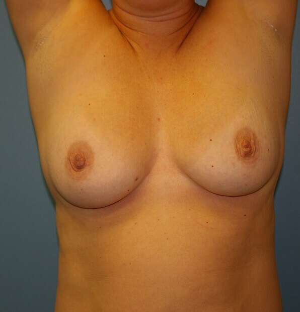 Modified Mastopexy w/Implants Before