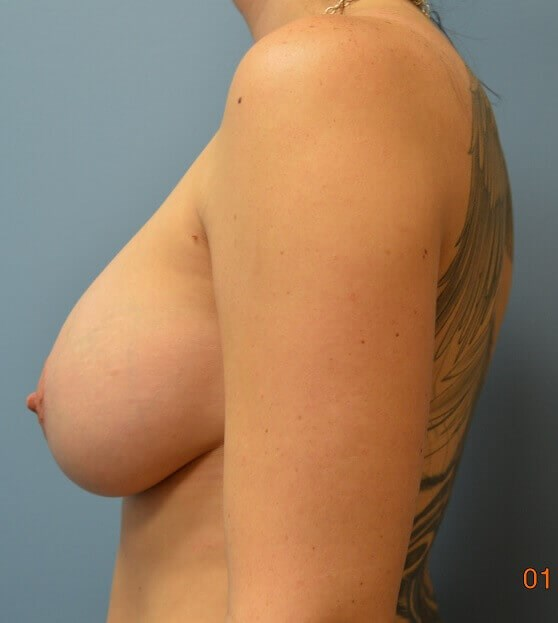 Modified Mastopexy w/Implants After