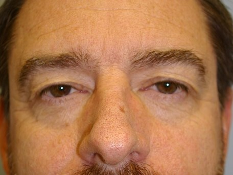 Upper & Lower Eye Lid Lift Before