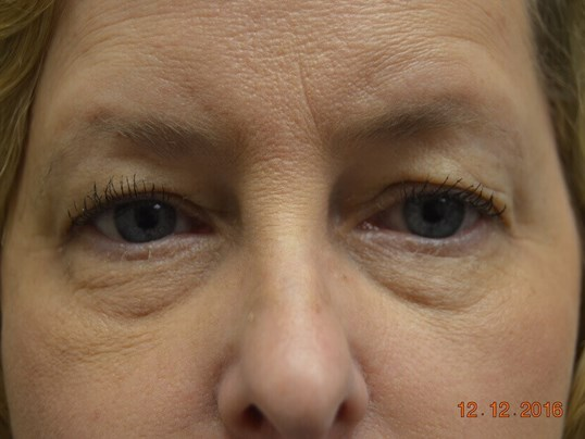 Upper & Lower Eyelid Lift Before
