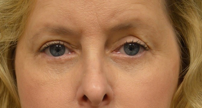 Upper & Lower Eyelid Lift After