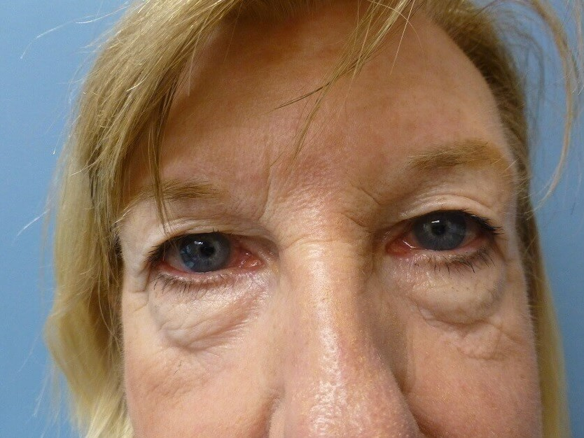 Brow,Upper & Lower Eyelid Lift Before