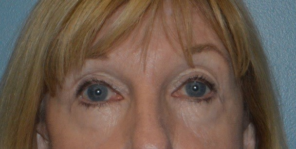 Brow,Upper & Lower Eyelid Lift After