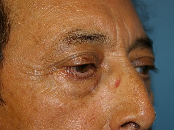 Lower Eyelid Lift Before