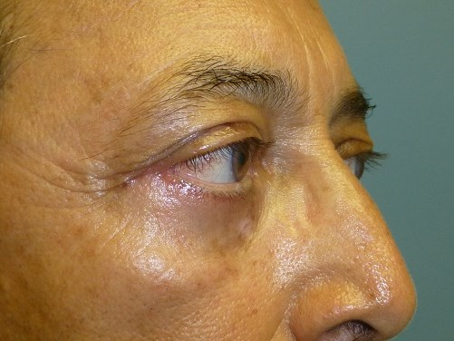 Lower Eyelid Lift After