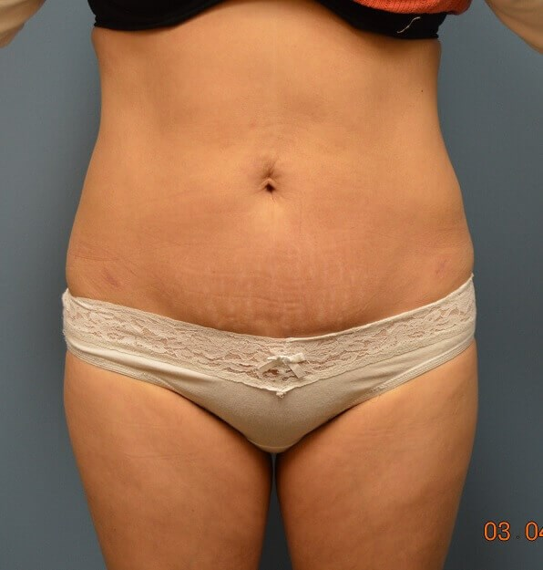 Liposuction After