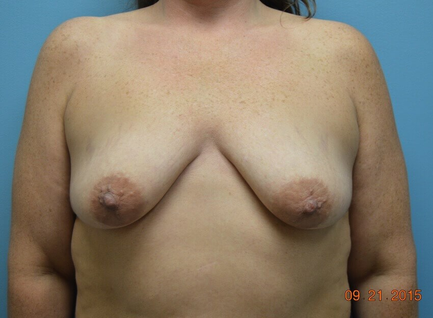Vertical Mastopexy w/Implants Before