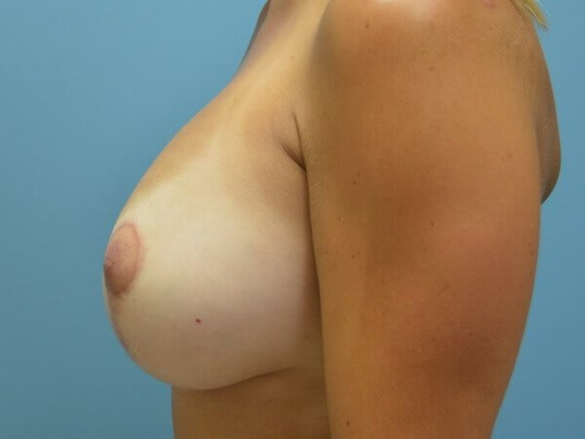 Vertical Mastopexy w/Implants After