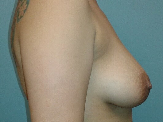 Full Mastopexy w/Implants Before