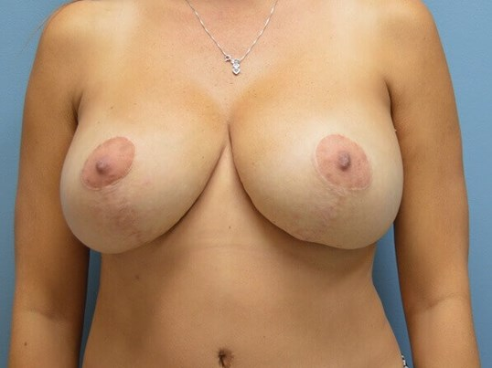 Full Mastopexy w/Implants After
