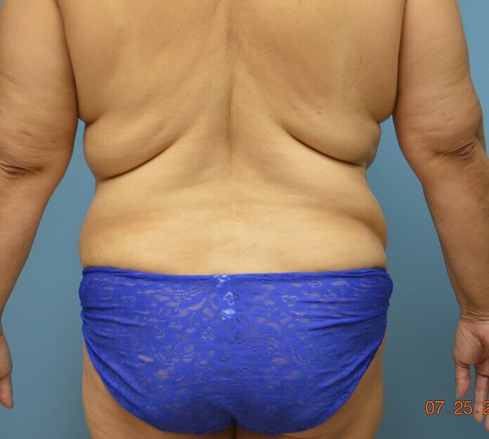 Tummy Tuck with Liposuction After